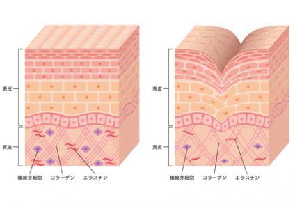 シワの構造
