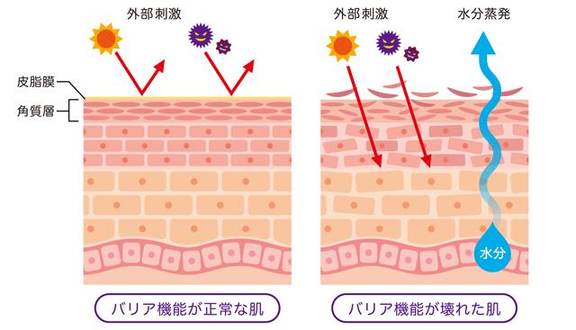 外部刺激 バリア機能